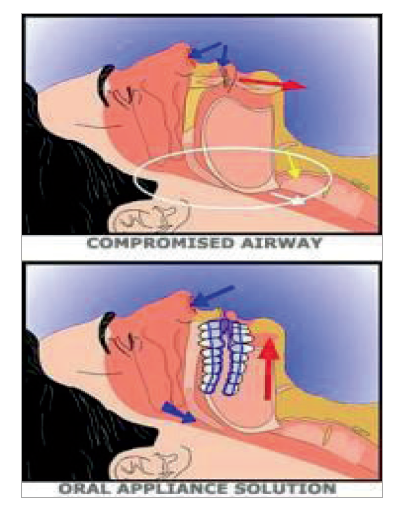 compromised airway sleep apnea | Collegeville Sleep Well